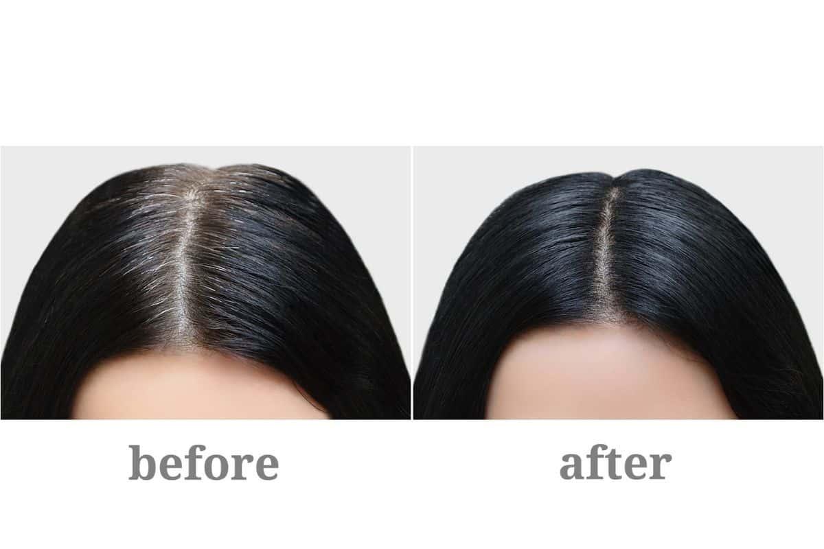 Emu oil for hair loss reviews